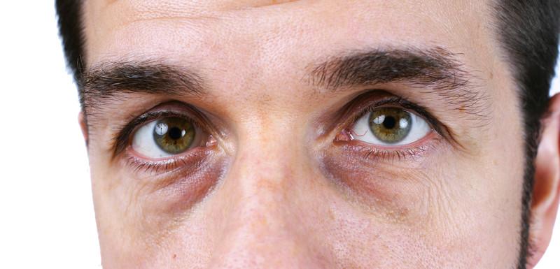 reduce dark circles under eyes